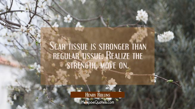 Scar tissue is stronger than regular tissue. Realize the strength move on.